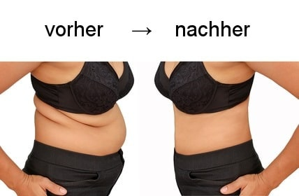 Fettabsaugung vorher und nachher