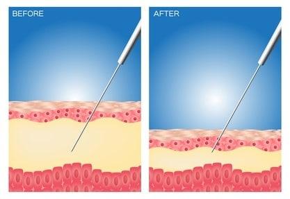 Liposuktion